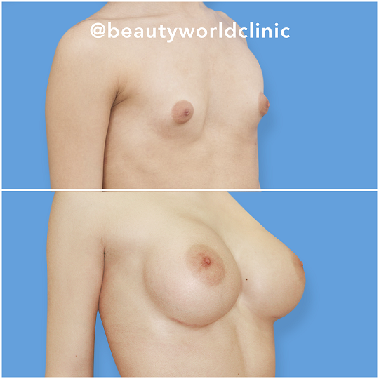 breastaugmentationsbeautyworldcliniclithuania2